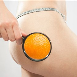 Cellulite: scopri come eliminarla definitivamente!